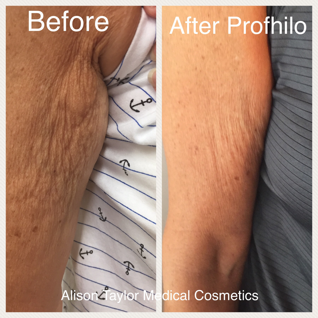 Profhilo - expert treatments  Alison Taylor Medical Cosmetics
