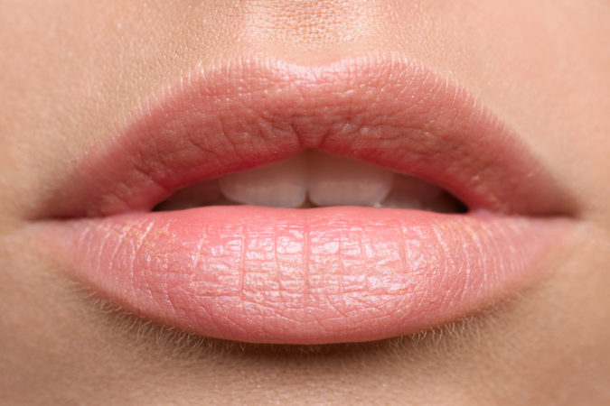 Beautiful Lips – Cupid's Bow Treatment